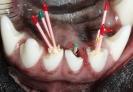 Эндодонтия. Лечение зубных каналов.